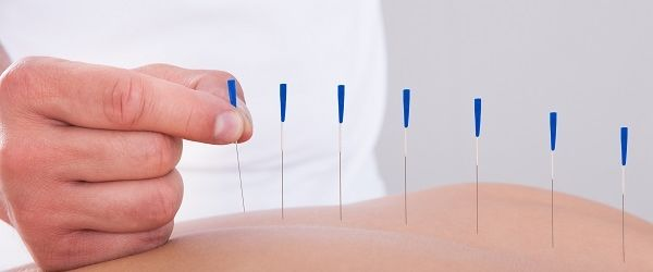 complimentary therapy acupuncture